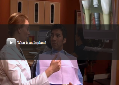What is an implant