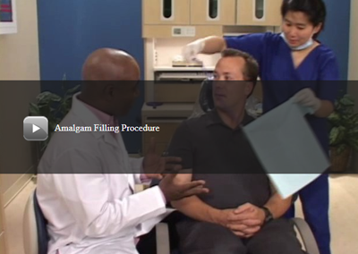 Amalgam Filling Procedure