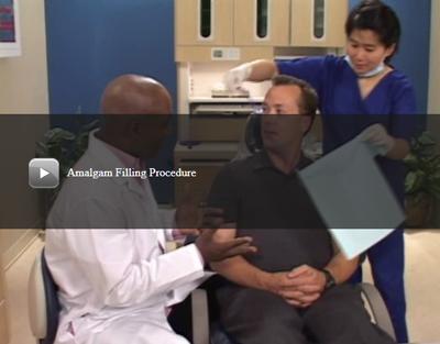 Amalgam Filling Procedure