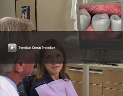 Porcelain Crown Procedure