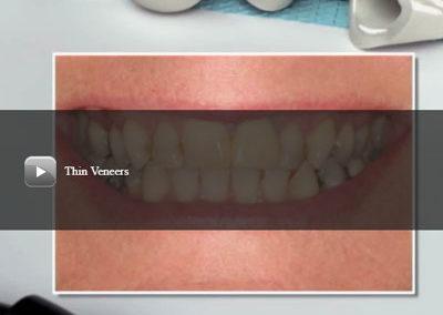 Thin Veneers