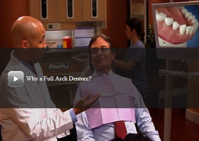 Why a Full Arch Denture?